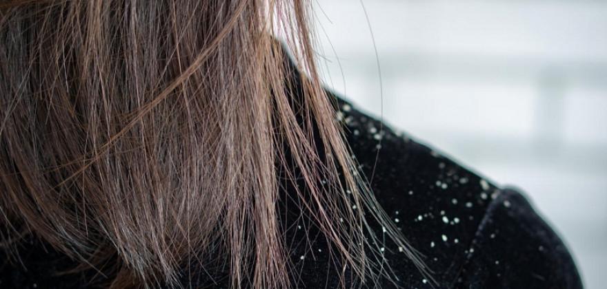 Pielęgnacja i leczenie włosów z łupieżem